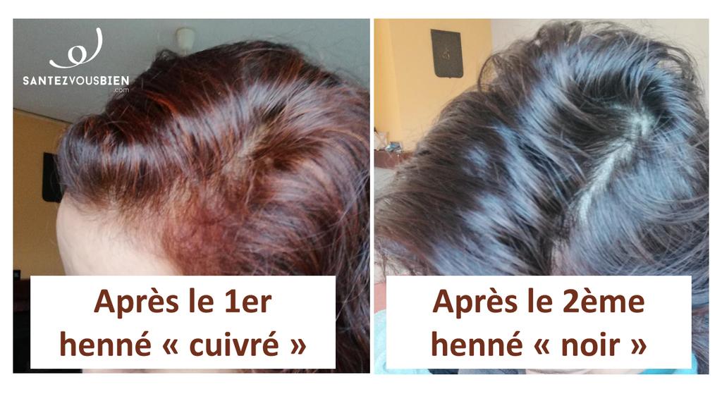 Comment Couvrir Naturellement Les Cheveux Blancs Santez Vous Bien